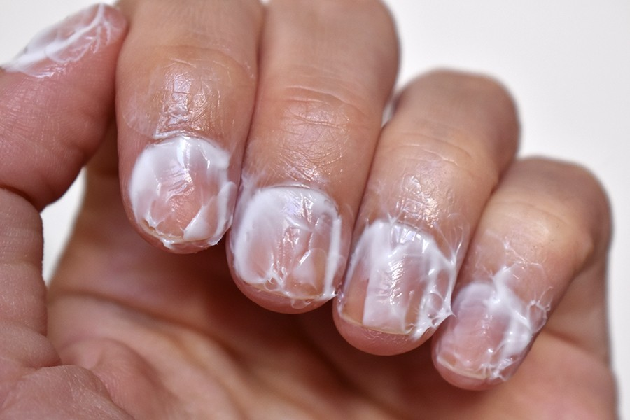 Dry Cuticles And Skin Around Nails | Best Nail Designs 2018